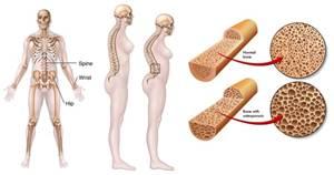 Pengobatan Osteoporosis Secara Tradisional