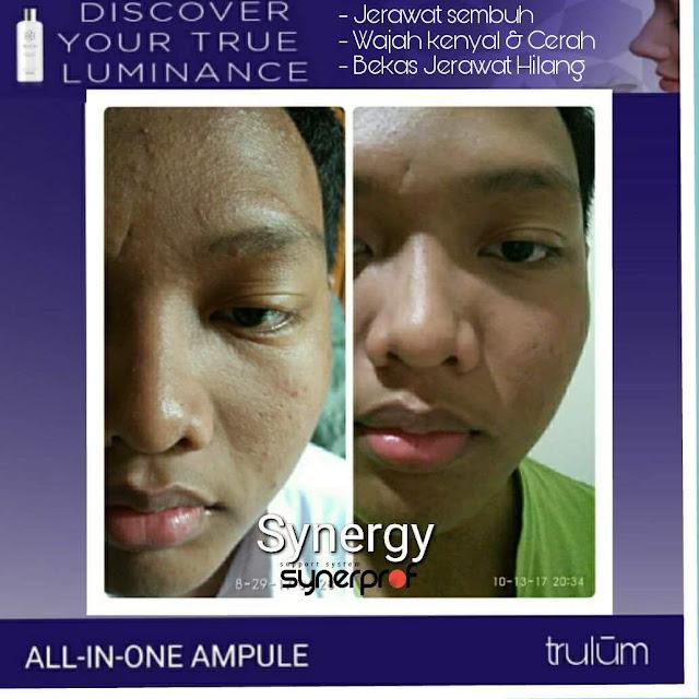 Bebas Bopeng Bekas Jerawat, Flek Hitam Tanpa Harus Laser Atau Ke Tempat Skin Care Di Tuntang Semarang