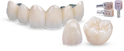 các loại răng sứ