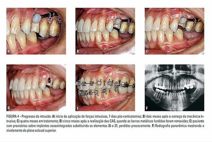 PDF: Corticotomias alveolares na Ortodontia: indicações e efeitos na movimentação dentária