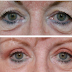 Blepharoplasty – Important Things To Consider