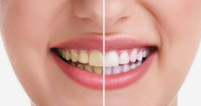 Penyebab Gigi Kuning Dan Cara Ampuh Mengatasinya