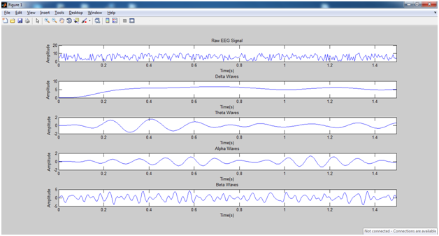 Online MATLAB Projects: Brain signal data by EEG signal processing