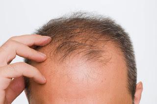 Penyebab Rambut Gugur di Usia Muda