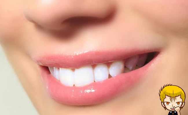Cara Mudah Memutihkan Gigi Secara Alami Dalam Waktu 5 Menit