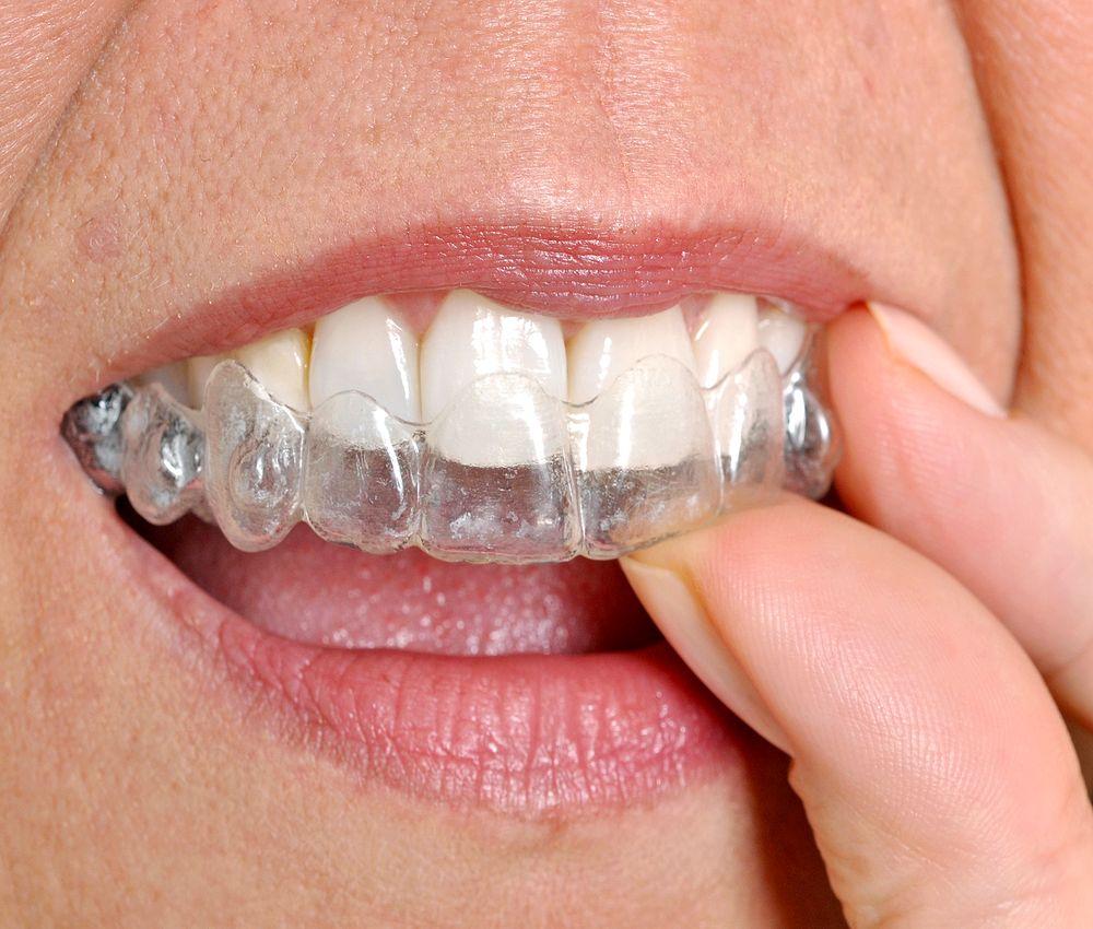 invisalign-ortodoncia