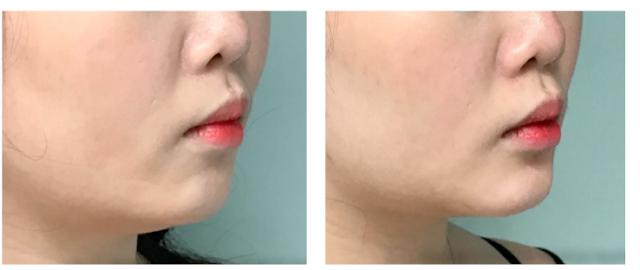 rejuvenecimiento-facial