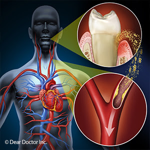 implant-dentist-sydney-is-there-a-link-between-gum-disease-and-cardiovascular-health
