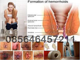 Memilih Microlax atau AmbeJOSS Obati Wasir (Hemoroid)