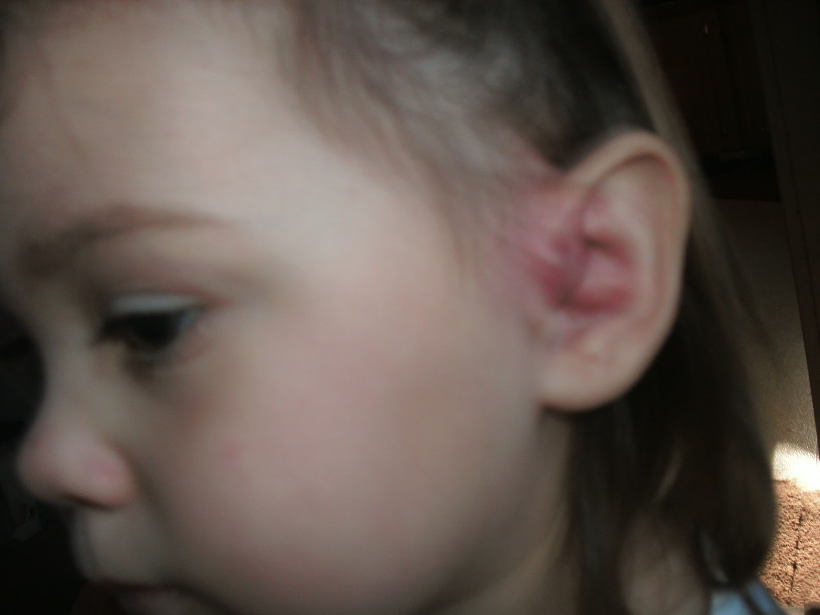 Domestic Felicity (Deo volente): First Sickness-Preauricular Pit