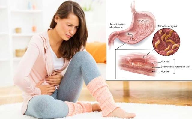 Cara Menyembuhkan Penyakit Lambung Maag Kronis