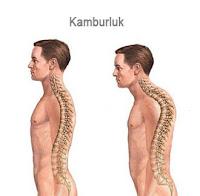 Sırtı normal ve kambur olan iki insan modelindeki omurilik eğriliklerini gösteren çizim