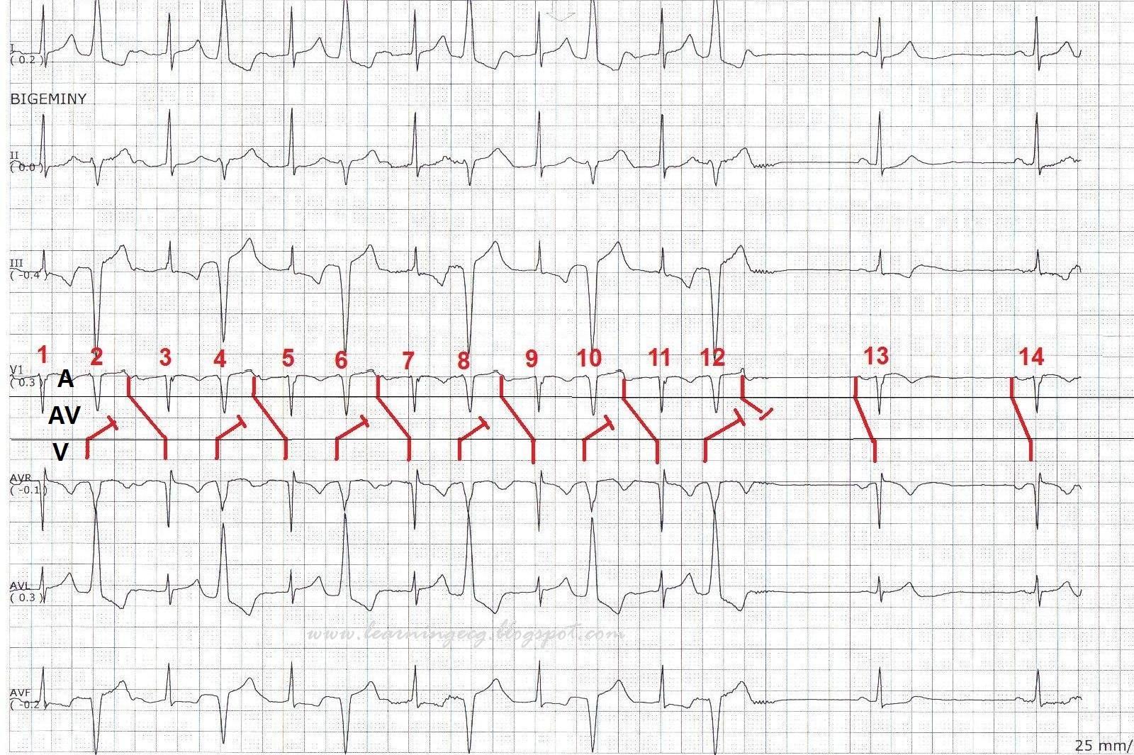 ecg rhythms  prolonged pr interval due to concealed ventriculoatrial  va  conduction