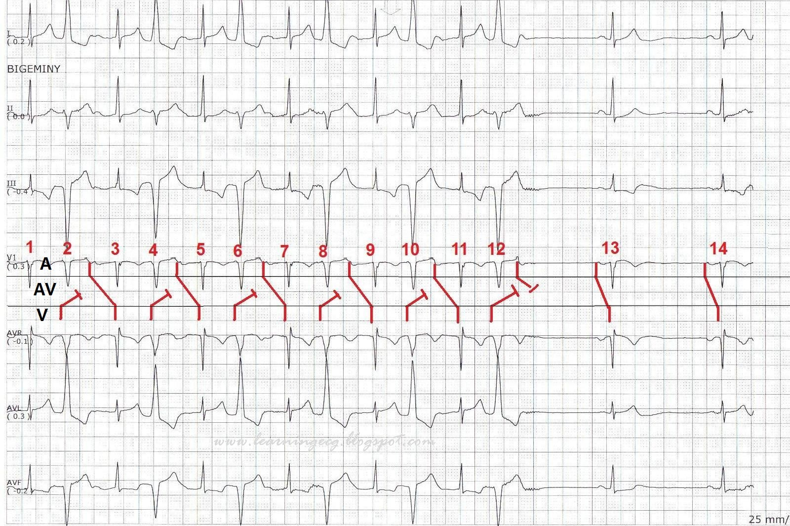 Ecg Rhythms Prolonged Pr Interval Due To Concealed