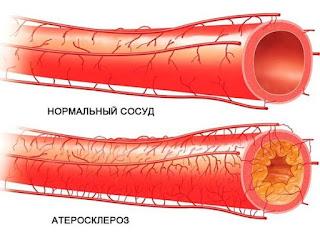Как очистить артерии за месяц. Народное средство