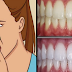 How to Eliminate Bad Breath Permanently and Whiten Your Teeth Fast With Simple Home Remedies