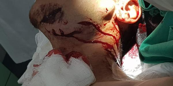 Tubarão ataca surfista em Fernando de Noronha