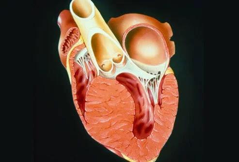 pengertian kardiomiopati
