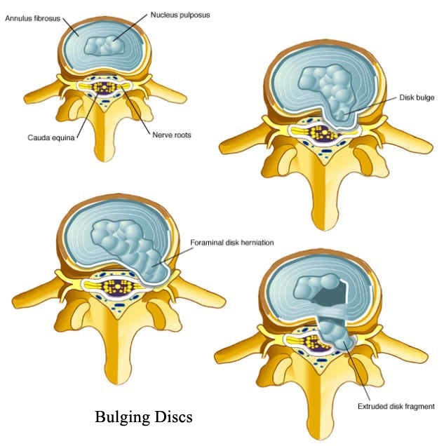what is a protruding disc
