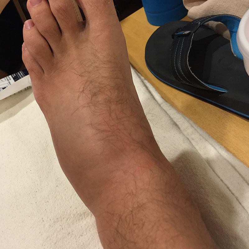 is the top of my foot broken