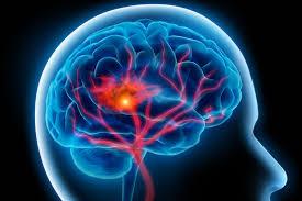 Pengobatan Sakit Stroke Awal, Bagaimana Cara Alami Untuk Mengatasi Stroke Ringan?, Cara Alami Untuk Mengobati Penyakit Stroke Ringan
