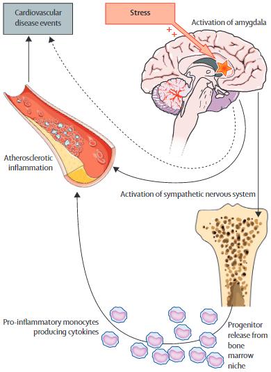 図:ストレス-扁桃体-骨髄-血管炎症