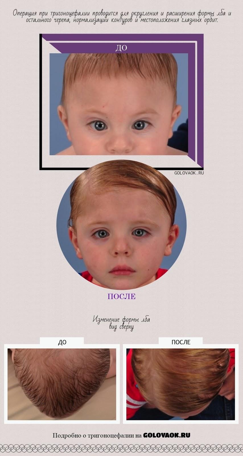 фото ребенка с тригоноцефалией до и после хирургического вмешательства