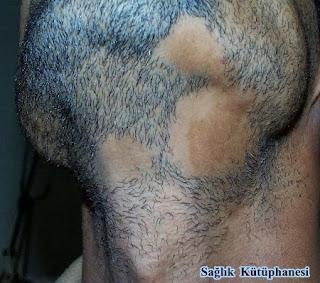 sakal kıran tedavisi kesin çözüm