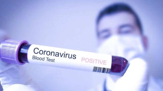 Ilustrasi tes virus Corona