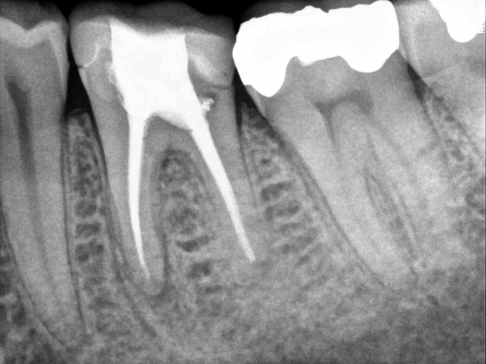 molar root canal