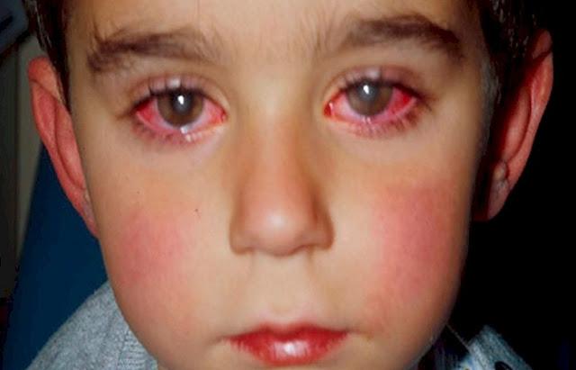 Este niño perdió el 75% de la visión por culpa de este juguete muy común