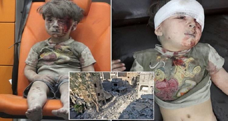 الممرضة التي أسعفت الطفل السوري عمران تكشف سر عدم بكائه