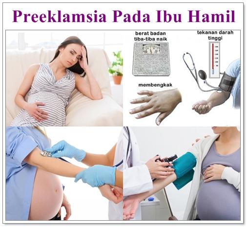 Pengobatan Herbal Preeklamsia Pada Ibu Hamil
