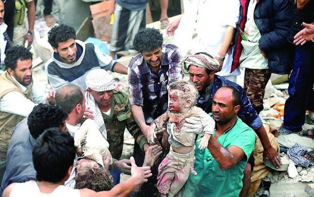 Akibat Ulah Saudi, 10 Ribu Warga Yaman Meninggal dan 7 Juta Orang Kekurangan Gizi