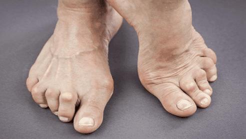 روماتويد المفاصل, اعراض مرض الروماتيزم, اعراض الروماتيزم في اليدين, اعراض مرض الروماتويد, اعراض الروماتويد في اليد, اعراض الروماتيزم في القدم, ماهي اعراض الروماتيزم