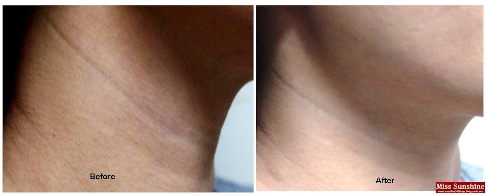 Wrinkles on my neck
