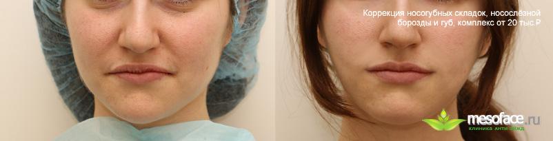 Носогубные складки после увеличения губ