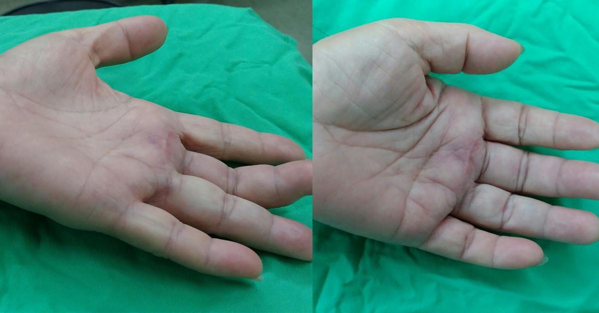超微創骨科: 板機指手術 的微創?與超微創