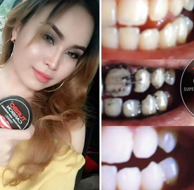 turbo carbon teeth whitening testimoni