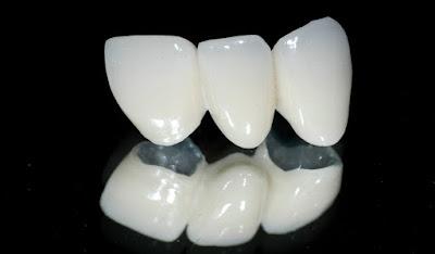 Tìm hiều về răng sứ Titan