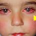 """Este niño perdió el 75% de la visión por culpa de un pequeño """"Juguete"""" muy común en nuestras casas"""
