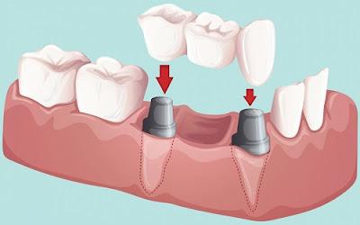 Làm cầu răng là gì và áp dụng khi nào?