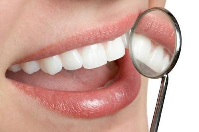 El blog de odontología