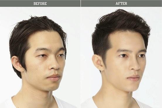 Asian nose surgery korea
