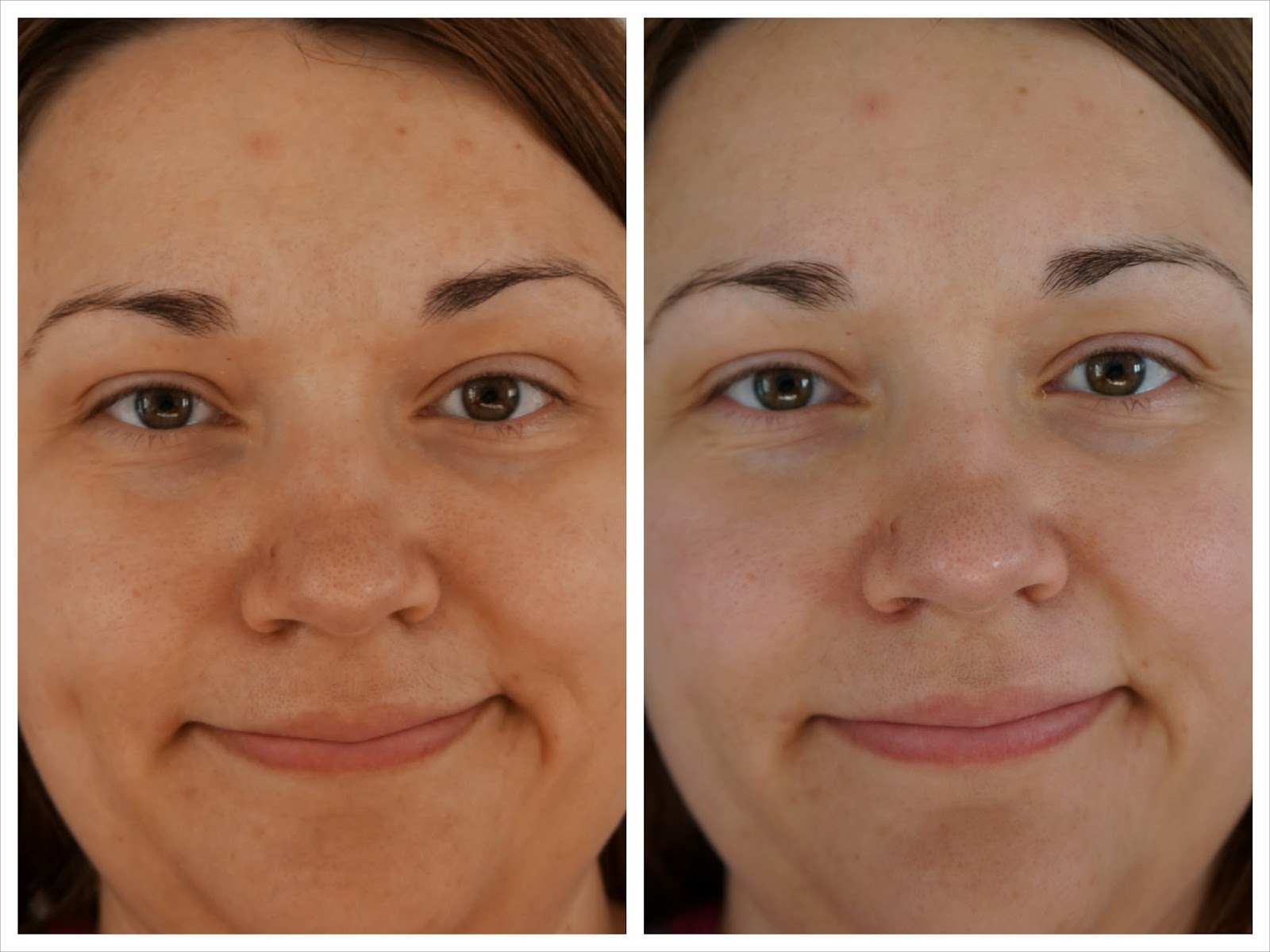 before and after pictures after a green peel at new york laser clinic