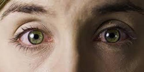 mata banyak kotoran begini cara mengatasi