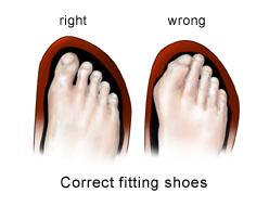 Best Steel Toe Shoes For Diabetics
