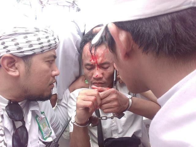 foto luka demo bela islam