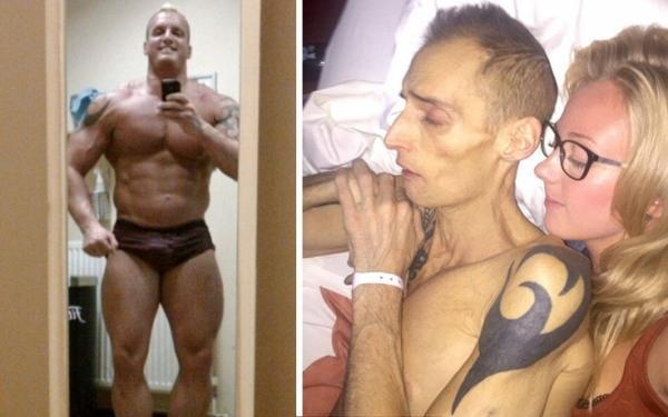 Bodybuilder κατανάλωνε 10.000 θερμίδες και έπινε 8 ενεργειακά ποτά την ημέρα! Στα 39 του πέθανε από καρκίνο στο συκώτι