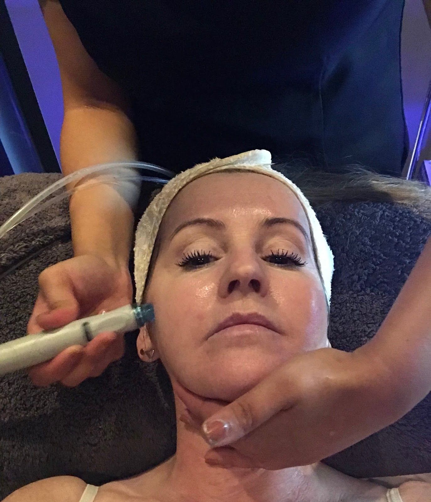 experiencing the Hydrafacial at Hampton clinic \ Priceless Life of Mine \ over 40 lifestyle blog